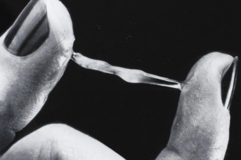Wet or sticky? What cervical mucus is trying to tell you